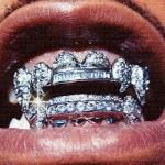 Грилли (Grills) - украшения для зубов