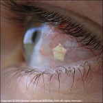 "Пирсинг глаза ""JewelEye"""