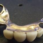 Золотые зубы Черчилля